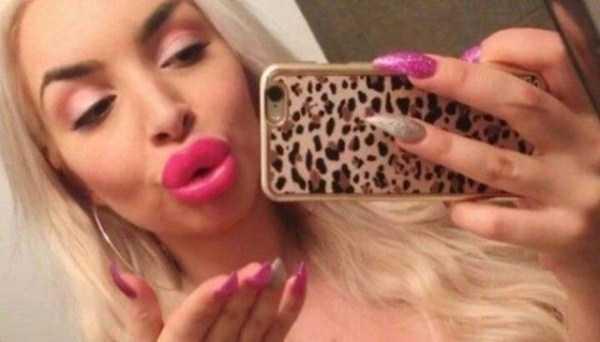 extreme-lips (12)