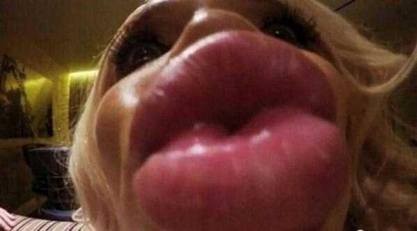 extreme-lips (30)