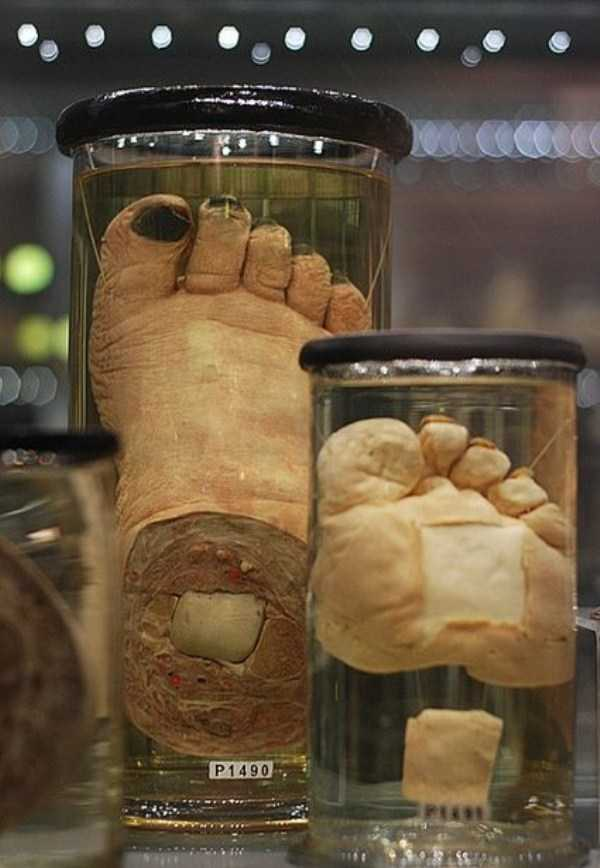 bizarre-things-in-jars (10)