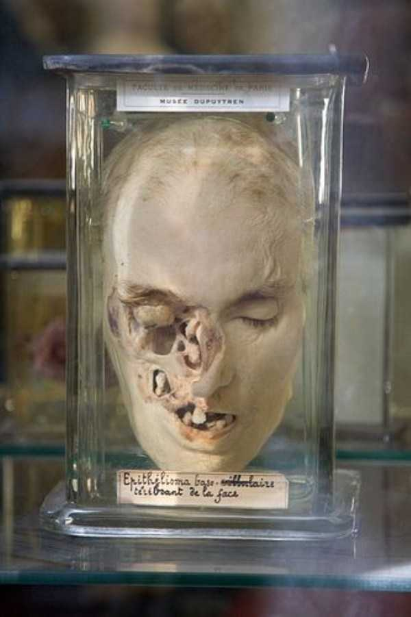 bizarre-things-in-jars (11)