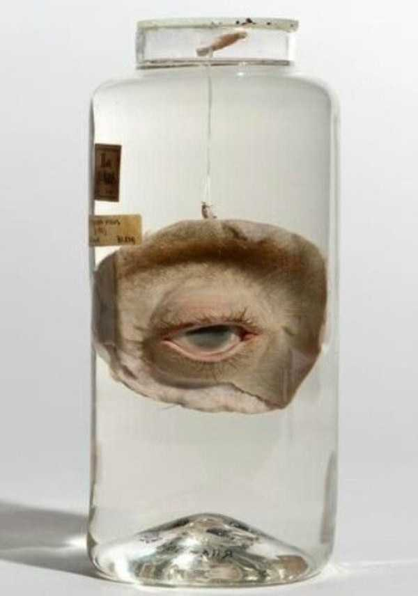 bizarre-things-in-jars (14)