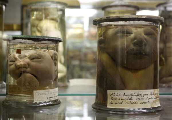 bizarre-things-in-jars (15)