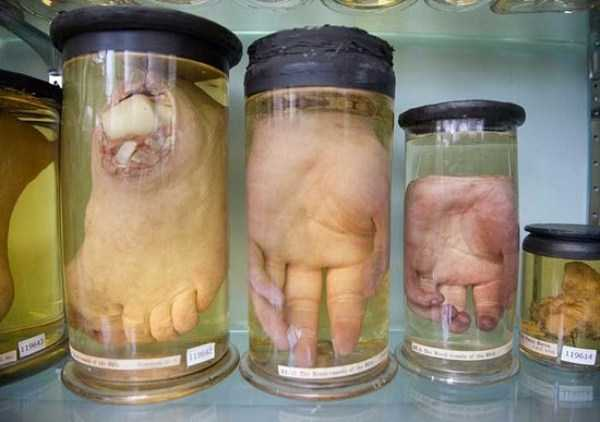 bizarre-things-in-jars (2)