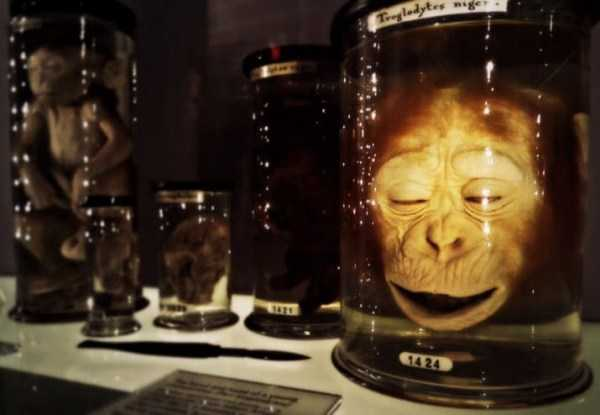 bizarre-things-in-jars (25)