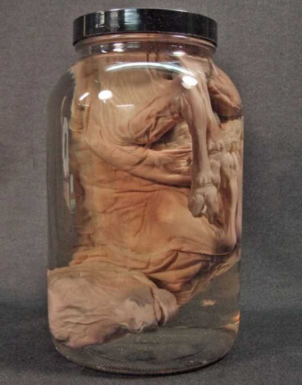 bizarre-things-in-jars (3)