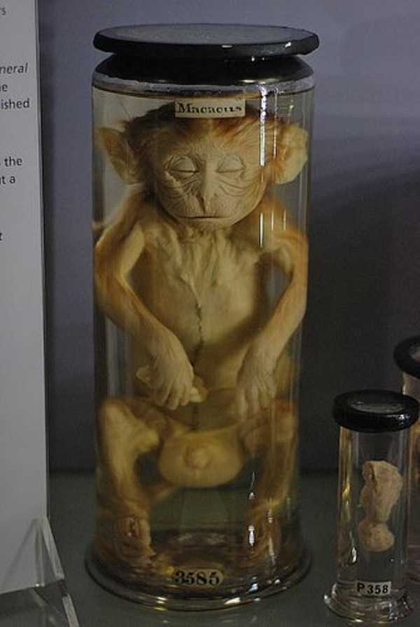 bizarre-things-in-jars (6)