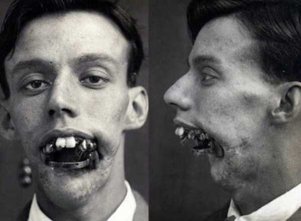 scary-vintage-photos (23)