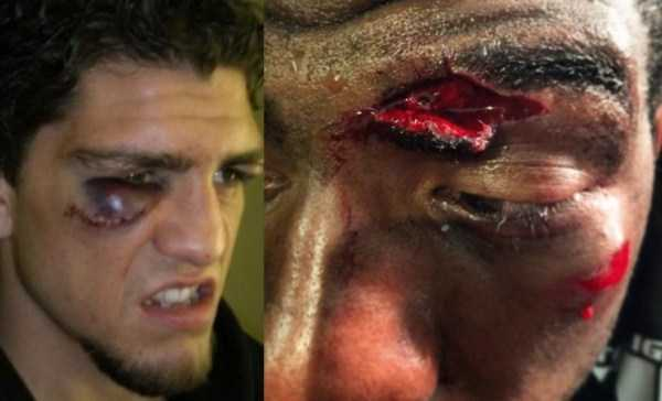 worst-mma-injuries (19)