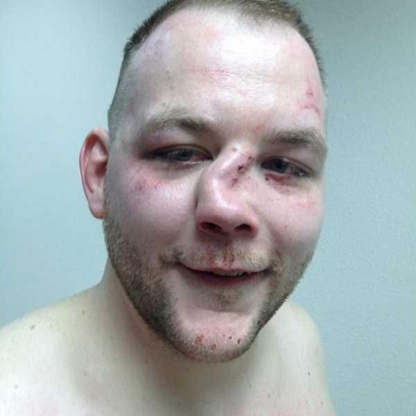 worst-mma-injuries (2)