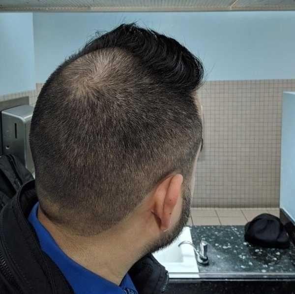 34 Ridiculously Terrible Haircuts Klyker